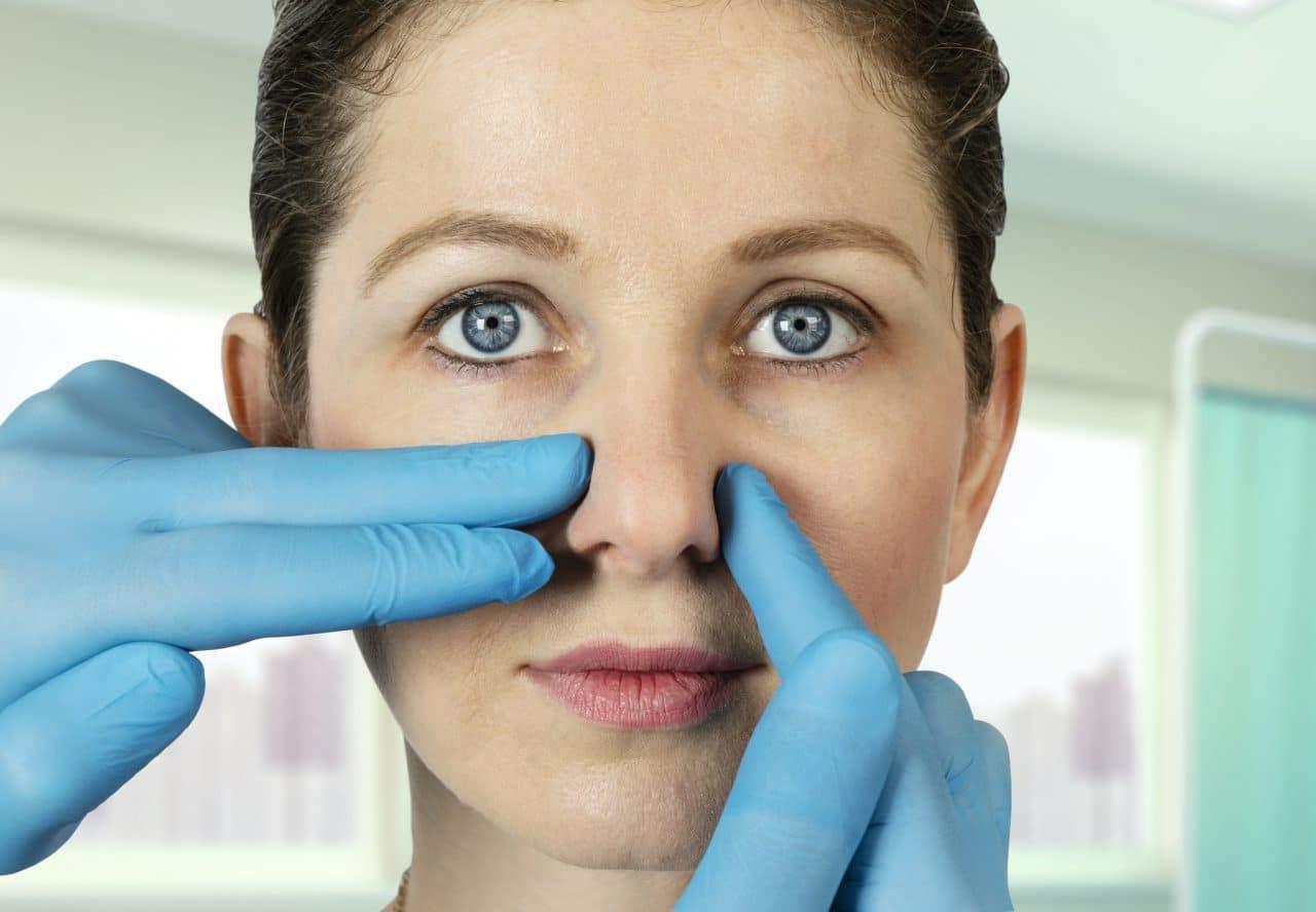 Chirurgia nasale: a quale specialista rivolgersi?
