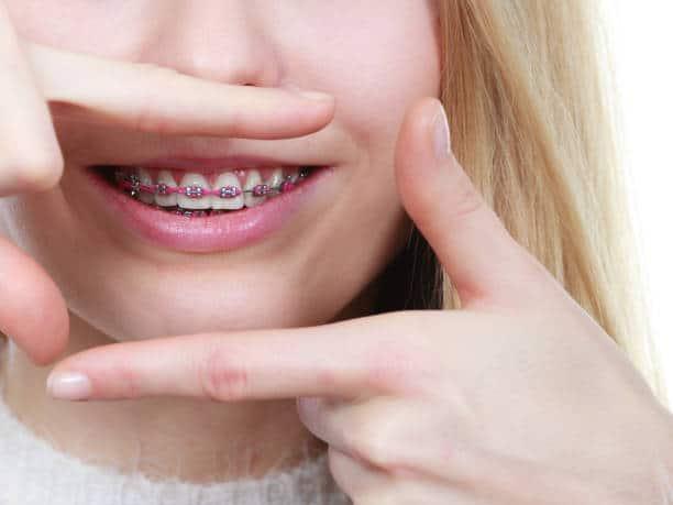 Ortodonzia: tutto quello che c'è da sapere! La cura del tuo sorriso, inizia dalle piccole cose
